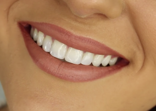 oral health in India